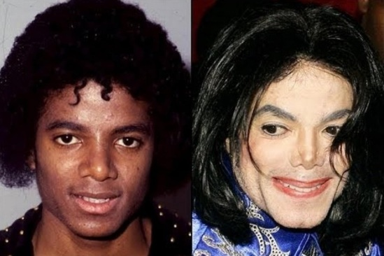 MICHAEL JACKSON SYNDROME