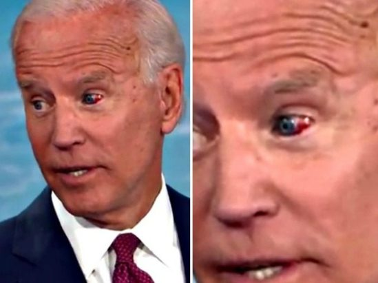 JOE Biden-HIT IN THE Eye